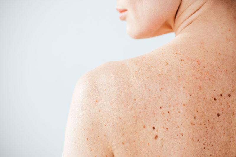 come riconoscere melanoma